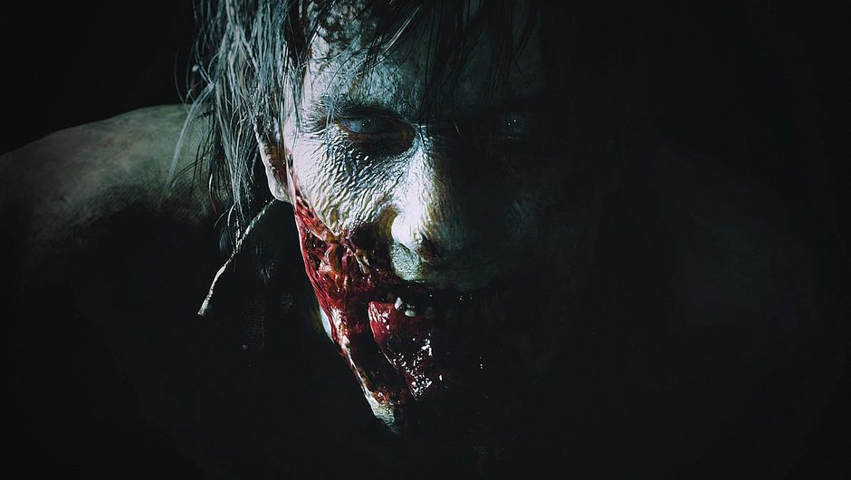 A zombie from Resident Evil 2 with half its face chewed off
